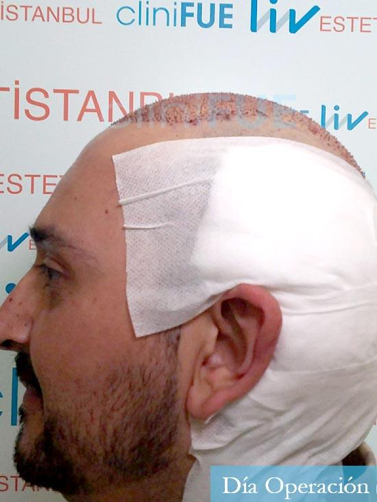 Jose-Manuel-36-Cadiz-trasplante-turquia-dia-operacion-4