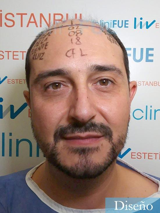 Cesar 40 anos Madrid injerto pelo turquia dia operacion diseno
