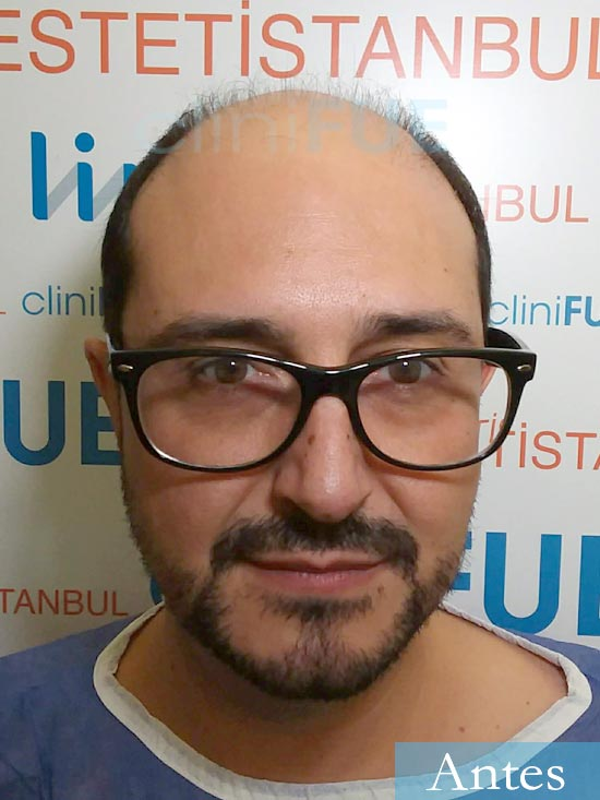 Cesar 40 anos Madrid injerto pelo turquia antes