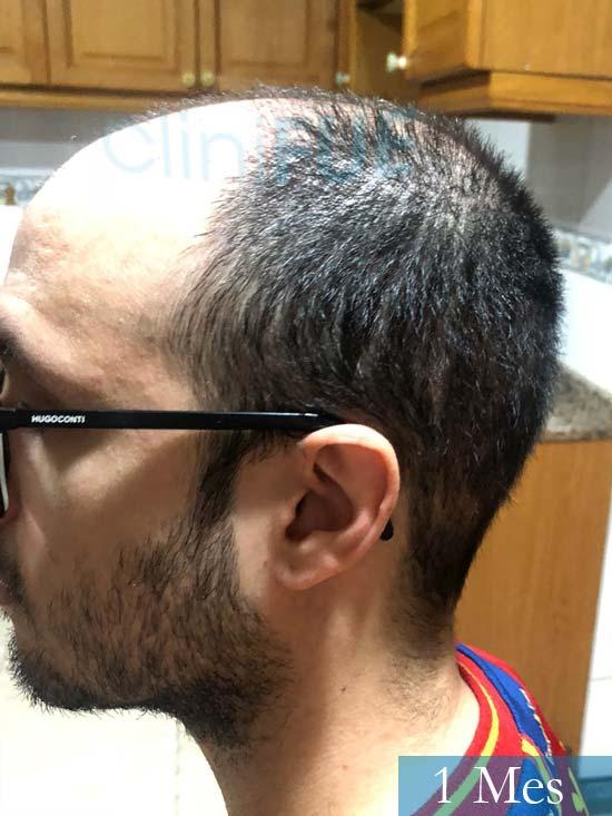 David trasplante de pelo turquia 1 mes 2