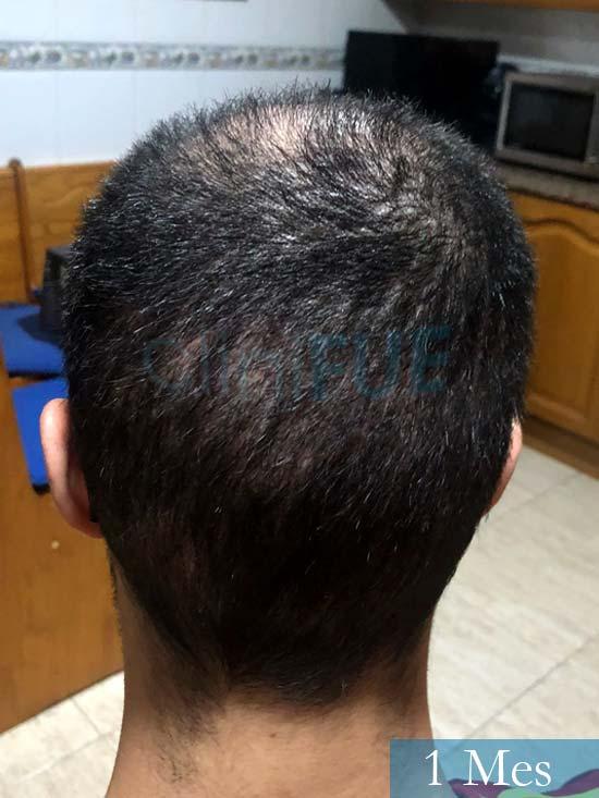 David trasplante de pelo turquia 1 mes 3