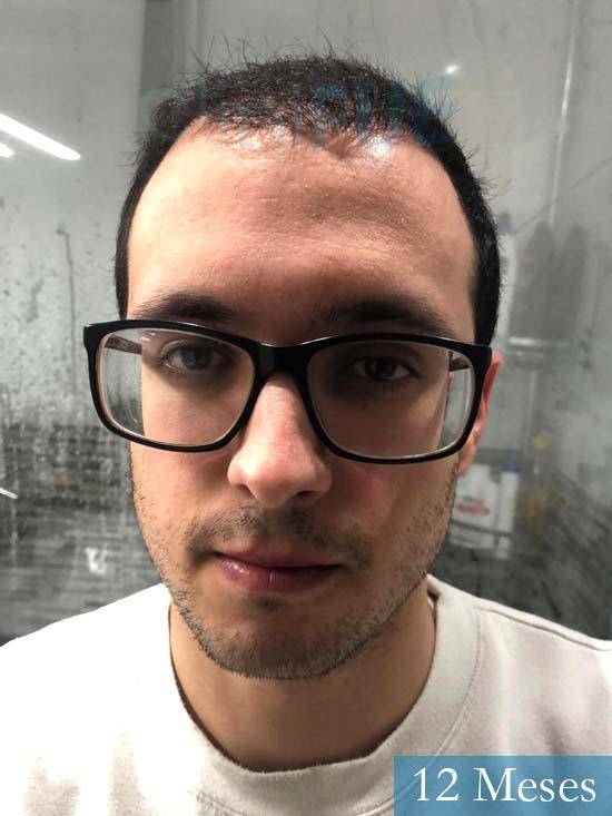 David trasplante de pelo turquia 12 meses