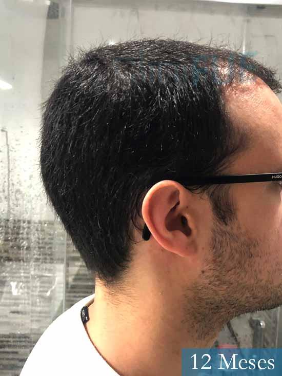 David trasplante de pelo turquia 12 meses 3
