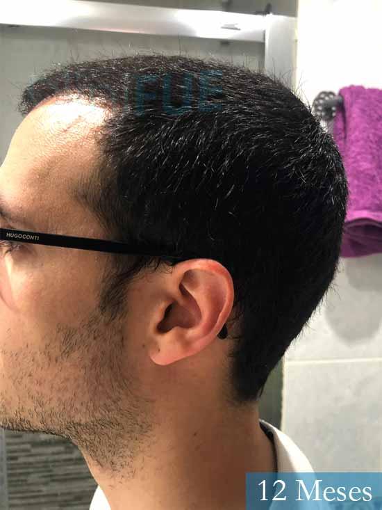 David trasplante de pelo turquia 12 meses 4