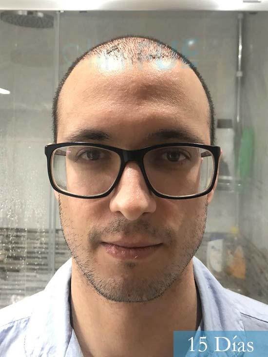 David trasplante de pelo turquia 15 dias