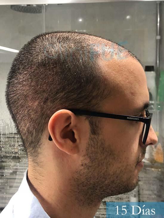 David trasplante de pelo turquia 15 dias 3