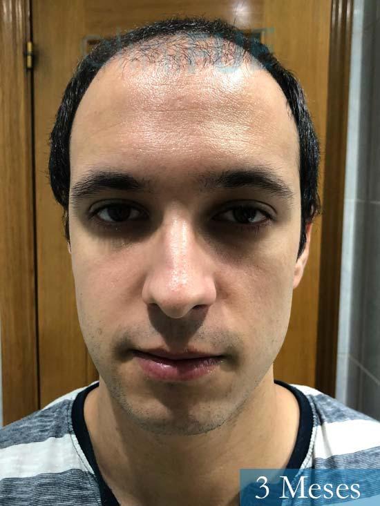 David trasplante de pelo turquia 3 meses
