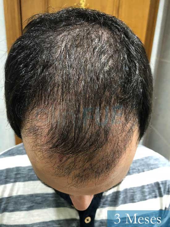 David trasplante de pelo turquia 3 meses 2