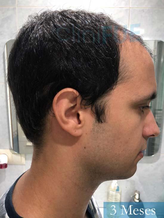 David trasplante de pelo turquia 3 meses 3