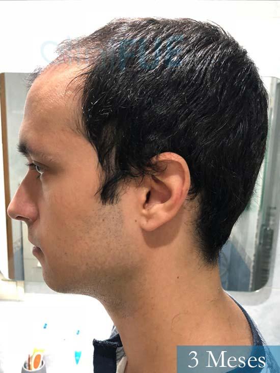 David trasplante de pelo turquia 3 meses 4