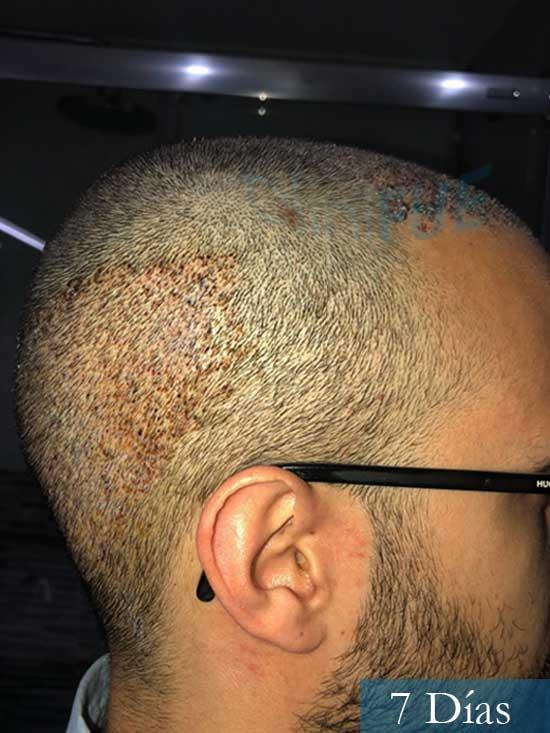 David trasplante de pelo turquia 7 dias 3