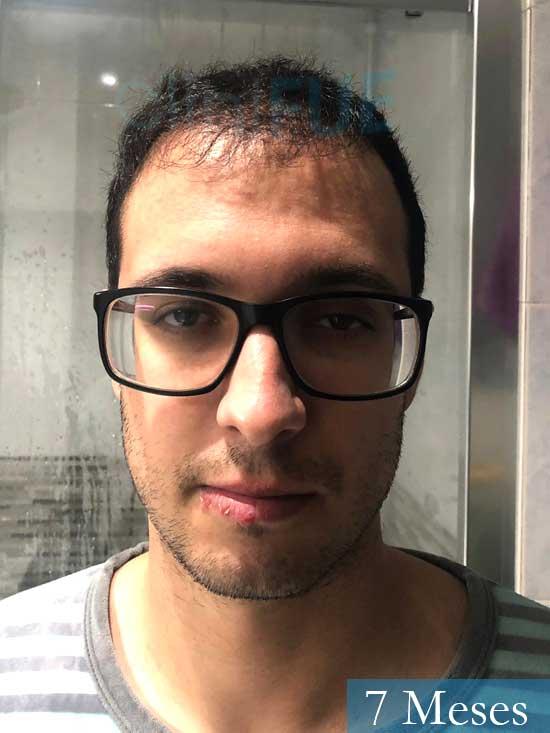 David trasplante de pelo turquia 7 meses