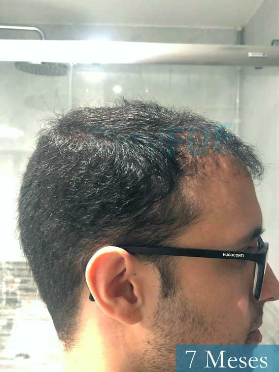 David trasplante de pelo turquia 7 meses 3