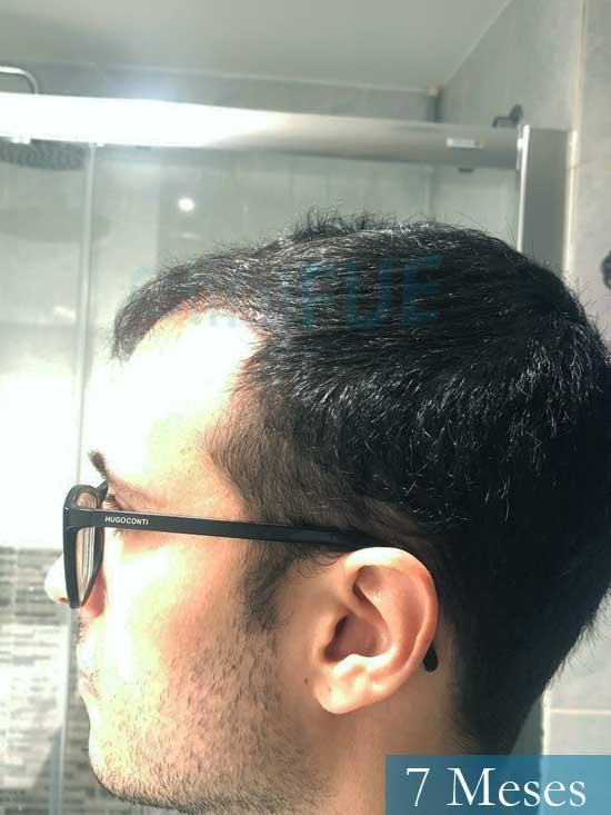 David trasplante de pelo turquia 7 meses 4