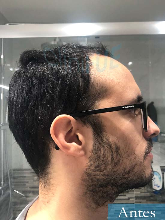 David trasplante de pelo turquia antes 3