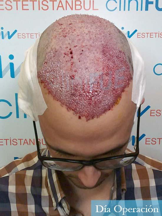 David trasplante de pelo turquia dia operacion 3