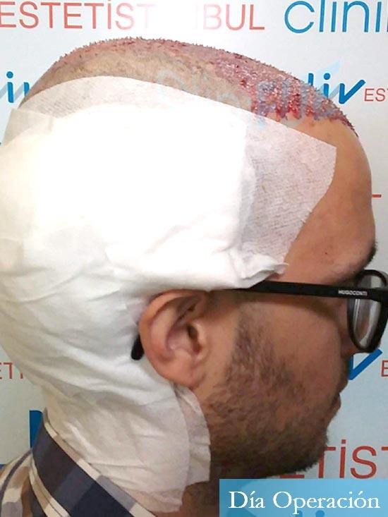 David trasplante de pelo turquia dia operacion 4
