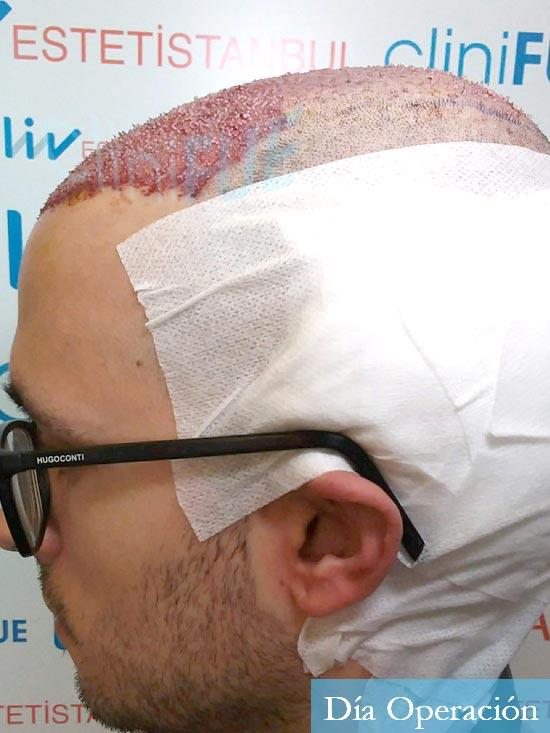 David trasplante de pelo turquia dia operacion 5