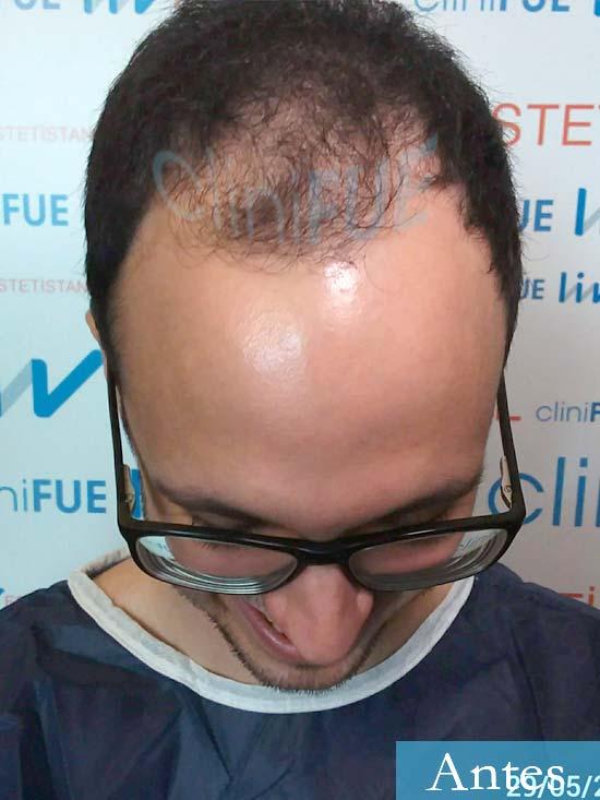 David trasplante de pelo turquia dia operacion antes 2