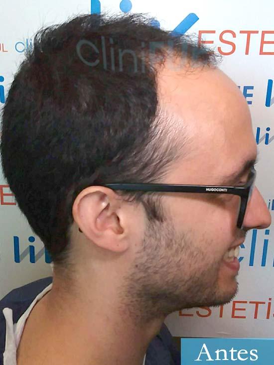 David trasplante de pelo turquia dia operacion antes 3