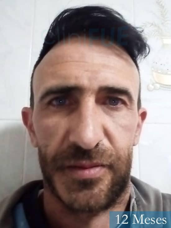Francisco 33 Murcia injerto pelo turquia 12 meses