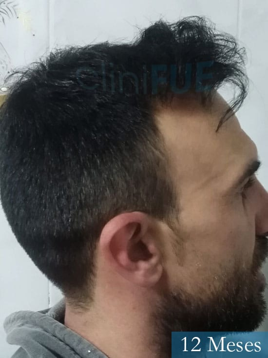 Francisco 33 Murcia injerto pelo turquia 12 meses 3