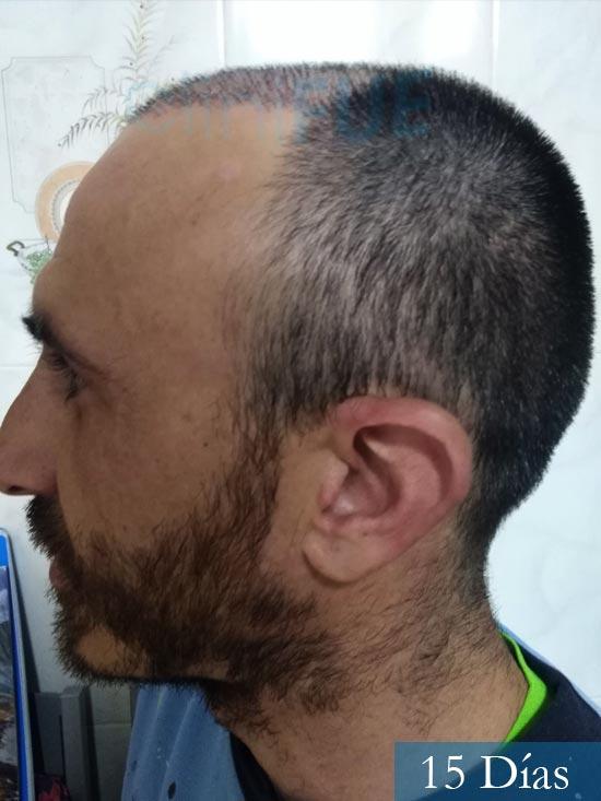 Francisco 33 Murcia injerto pelo turquia 15 dias 4