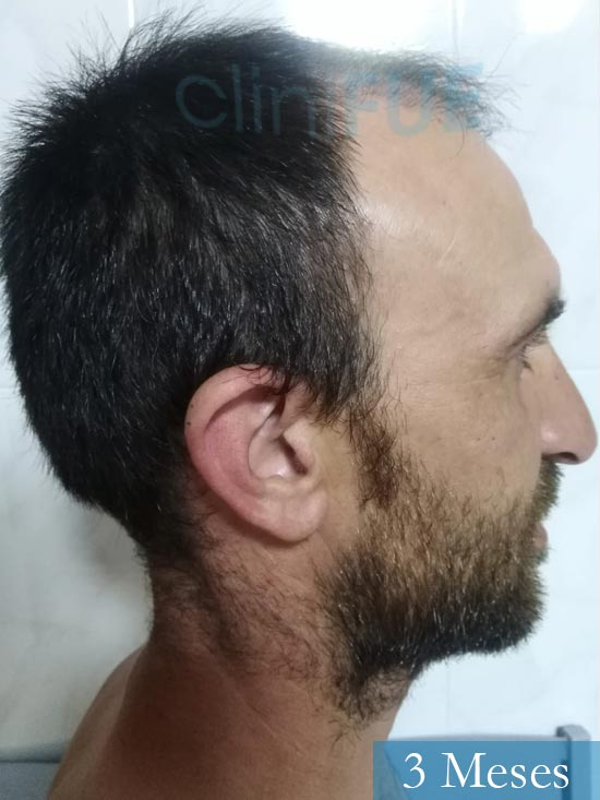 Francisco 33 Murcia injerto pelo turquia 3 meses 2
