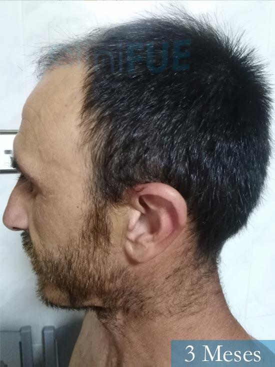 Francisco 33 Murcia injerto pelo turquia 3 meses 3