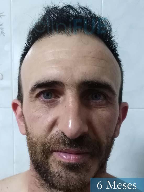 Francisco 33 Murcia injerto pelo turquia 6 meses