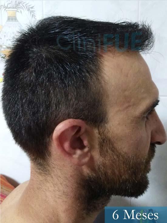 Francisco 33 Murcia injerto pelo turquia 6 meses 4