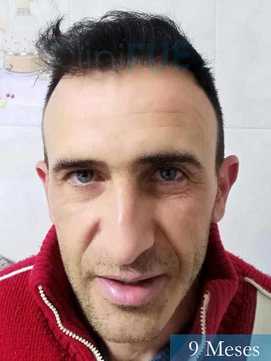Francisco 33 Murcia injerto pelo turquia 9 meses