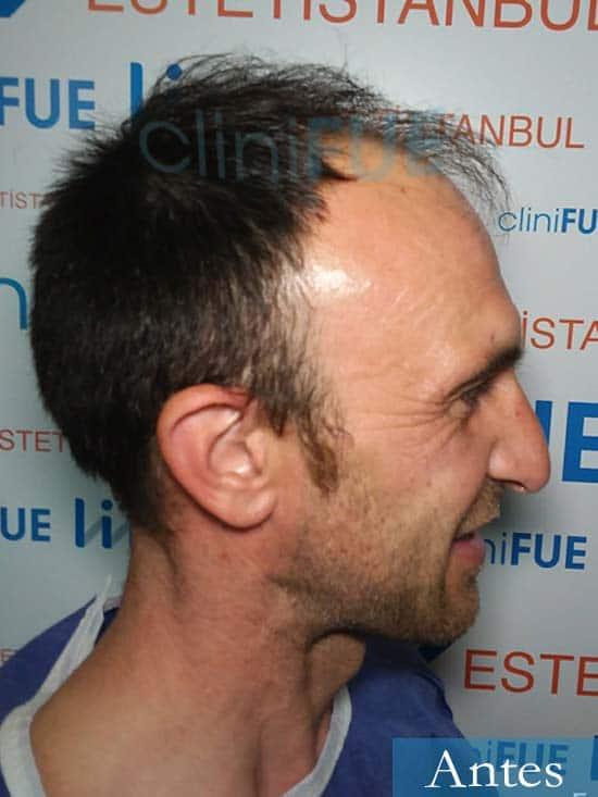 Francisco 33 Murcia injerto pelo turquia dia operacion antes 5