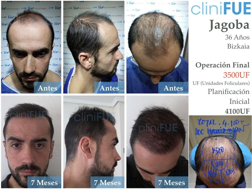 Jagoba trasplante de pelo turquia