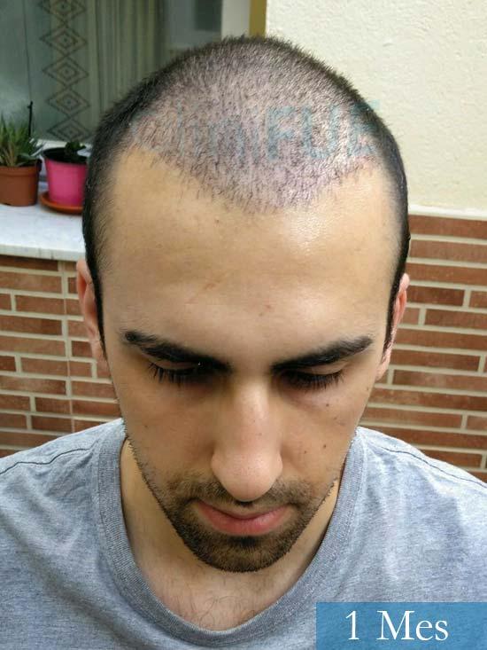 Javier trasplante de pelo turquia 1 mes