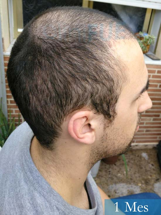 Javier trasplante de pelo turquia 1 mes 3