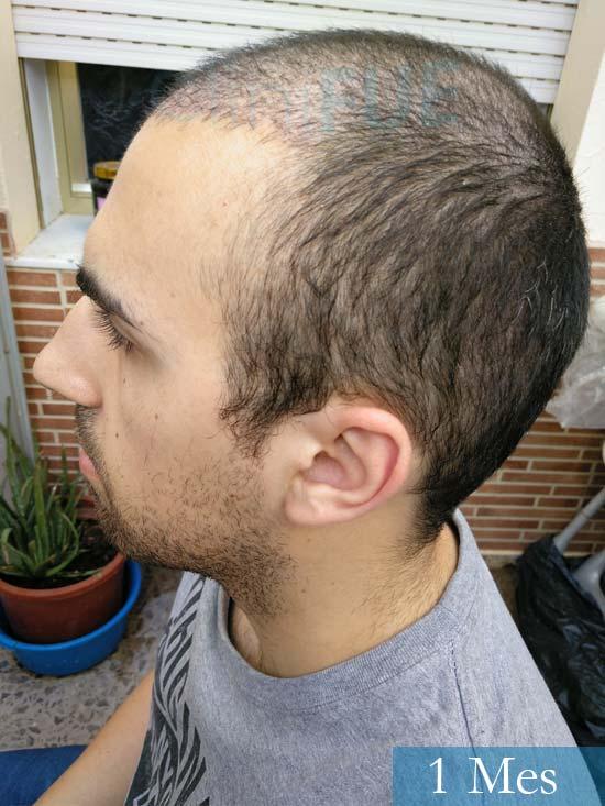 Javier trasplante de pelo turquia 1 mes 4