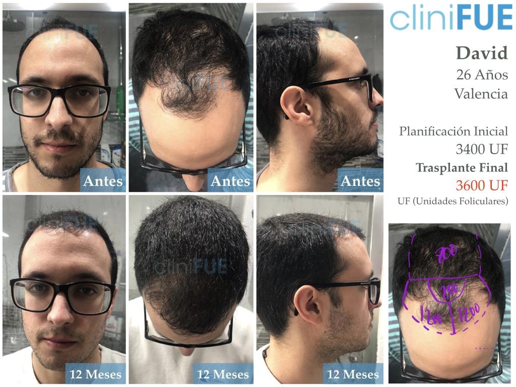 David trasplante de pelo turquia 12 meses antes - despues