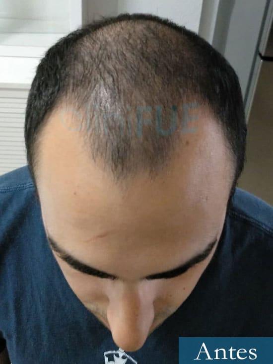 Javier trasplante de pelo turquia antes
