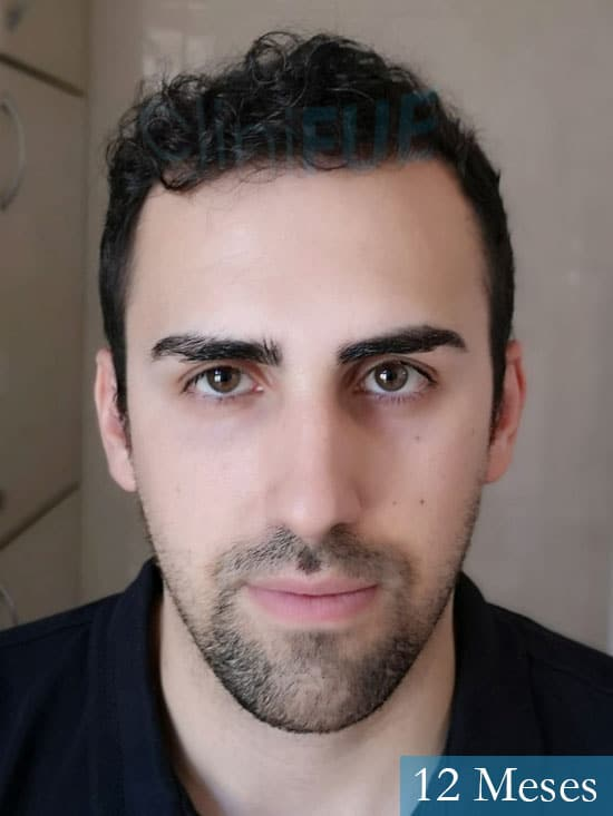 Javier trasplante de pelo turquia 12 meses