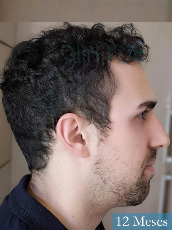Javier trasplante de pelo turquia 12 meses 3