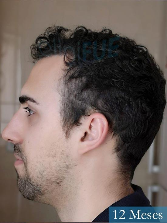 Javier trasplante de pelo turquia 12 meses 4