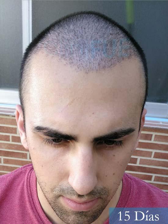 Javier trasplante de pelo turquia 15 dias