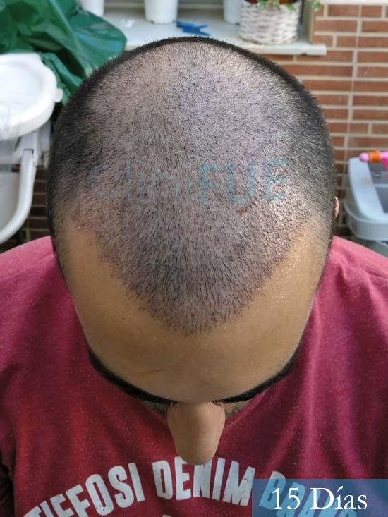 Javier trasplante de pelo turquia 15 dias 2