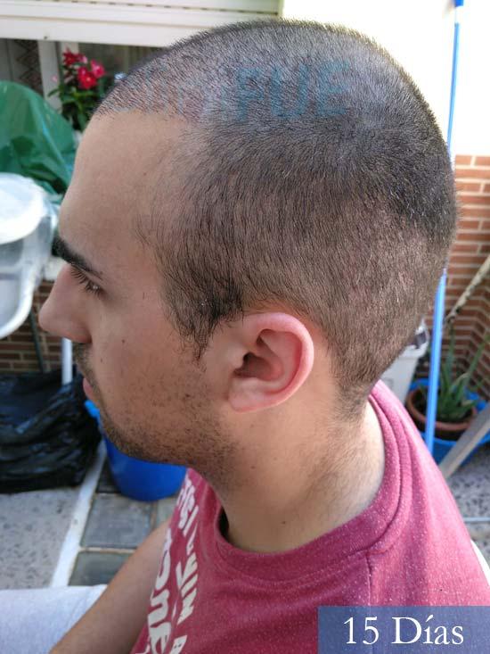Javier trasplante de pelo turquia 15 dias 4