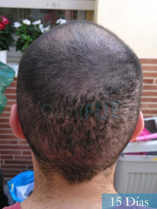 Javier trasplante de pelo turquia 15 dias 5