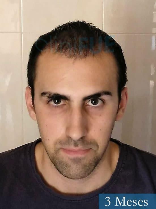 Javier trasplante de pelo turquia 3 meses