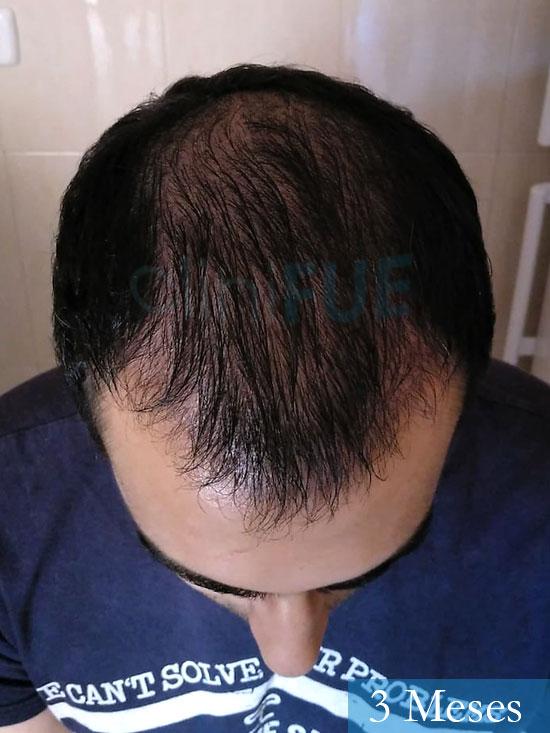 Javier trasplante de pelo turquia 3 meses 2