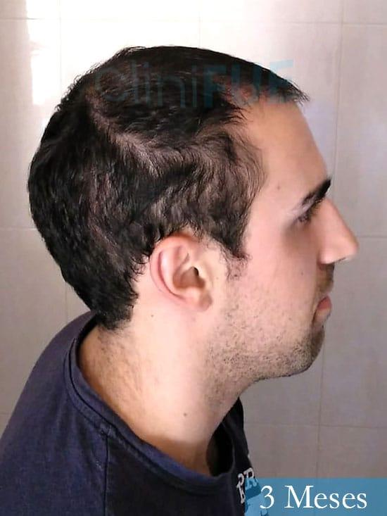 Javier trasplante de pelo turquia 3 meses 3