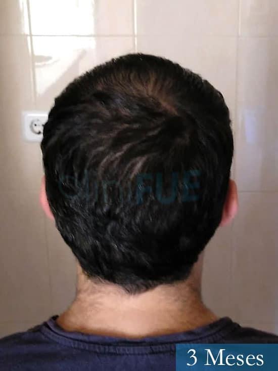 Javier trasplante de pelo turquia 3 meses 4